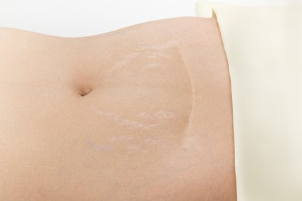 Scar from Cesarean