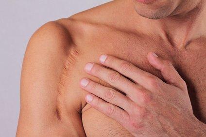 Narben nach Schulteroperation